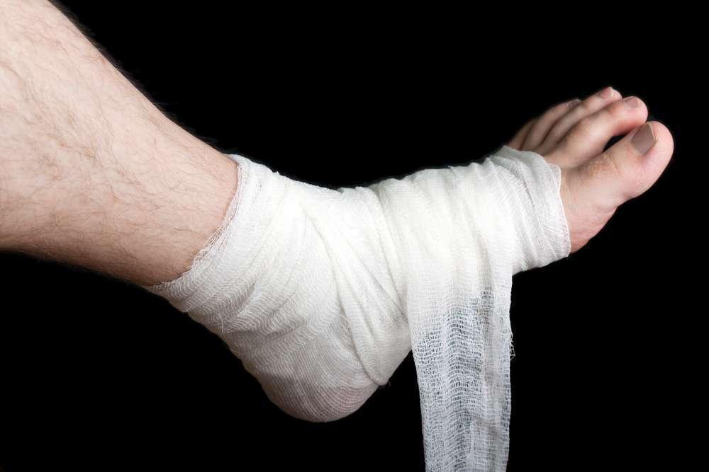 פצעי לחץ  (צילום: shutterstock)